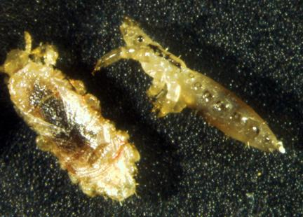 Dorsal and lateral views of Pediculus humanus