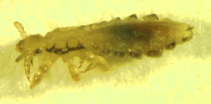 Whole body view of Pediculus humanus
